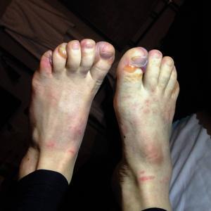 De fina fötterna under kvällen efter loppet.