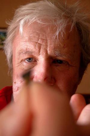 Här håller han fram en av sågtänderna som träffade honom i ansiktet.