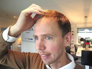 Christian Rosenqvist valde att få sin hårtransplantation gjord vid en klinik i Istanbul. Det blev billigare men minst lika bra som i Sverige, menar han.