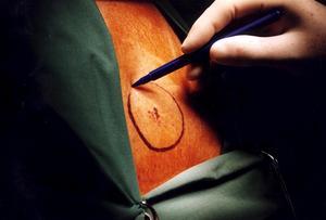 Tecken på att en hudförändring kan vara malignt melanom är att den är oregelbunden i formen och ojämn i kanten. Eller att den är ojämn i färgen, till exempel olika nyanser av brunt, svart, rött, rosa, blått eller vitt. Att den är större än fem millimeter. Märken som blöder är ett annat varningstecken.Foto: Björn Larsson Ask, (Scanpix)