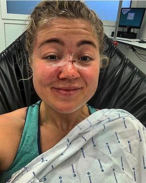 Hjärnskakning, brutet näsben och skrapsår blev konsekvenserna av kraschen för Frida Knutsson. Foto: Privat