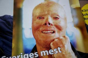 Den eldskadade brandmannen Lasse Gustavsson har blivit en nära vän till Fritz Hultgren.
