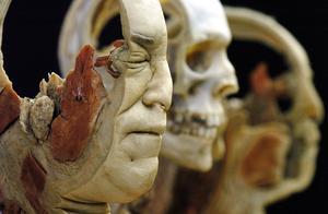 Den här bilden är hämtad från utställningen Body Worlds i Toronto, Kanada.