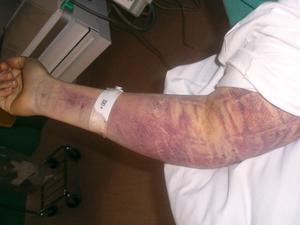 Så här såg hennes arm ut.