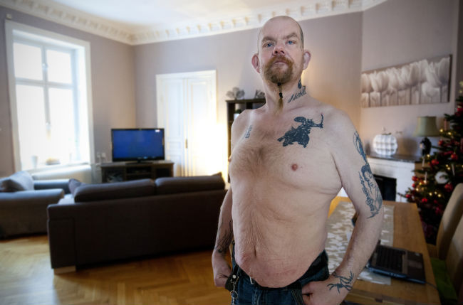 Operation av magsacken basta metoden mot fetma