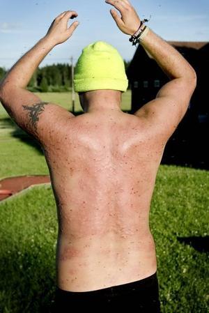 Svartnar. Torbjörn Eriksson visar sin lite mörkare sida.BITEN. Johan Törnblom är allergisk mot mygg, något som syns klart och tydligt på ryggen efter myggornas framfart.