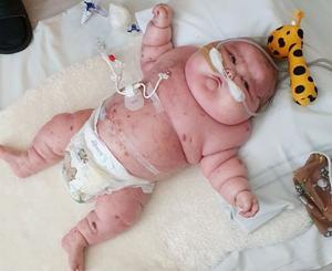 De extremt höga kortisondoserna har fått svullnaderna att växa dramatiskt under hans sju månader långa liv. Foto: Privat
