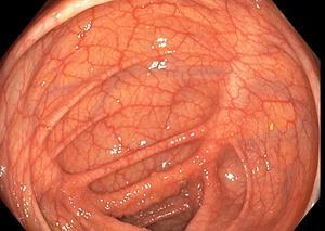 Här inne i tjocktarmen kan cancer uppstå. Om den upptäcks tidigt kan den tas bort och patienten botas. Bild: Endoskopimottagningen, Gävle sjukhus