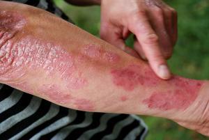 Avfjällad psoriasis. Foto: Anne Stiernquist