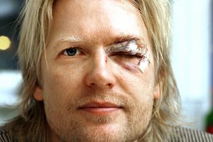 Ett otäckt jack, men Niklas Spångberg hade tur i oturen. Joakim Hedqvists skridsko tog precis över ögat och Spångberg klarade sig undan med nio stygn och huvudvärk. Detta hände 2006.