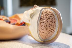 Demenssjukdomar yttrar sig på olika sätt beroende på vilka delar av hjärnan som har skadats, men gemensamt för personer med demenssjukdom är att de till slut inte kan klara sig utan stöd, skriver insändarna.