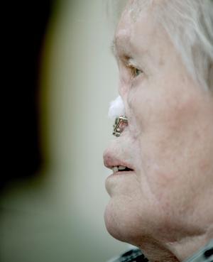 Gun-Britt Johansson från Köping drabbades av cancer 1988. Trots alla operationer kunde man inte konstruera en ny näsa med traditionell plastikkirurgi.