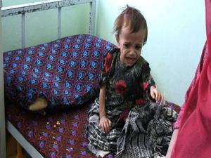 """Tragik. """"Fattigdom och okunskap speglas i undernärda barn"""", säger Khazar Fatemi."""