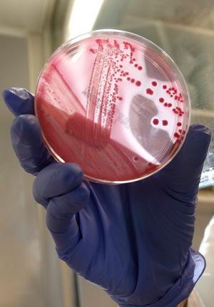 Odling av ehec-bakterier.