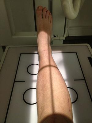Hans Olssons högerben innan den röntgades.