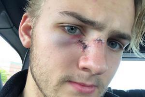 Den tidigare HV71-spelaren Erik Brännström fick en motståndares skridsko i ansiktet i NHL-premiären.
