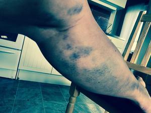 Efter olyckan tog Marianne Svelander bilder på sitt sargade ben.