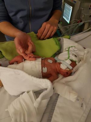 Både pojkarna fick andningshjälp från start. Loke lärde sig fortare att andas själv. Här får han andningshjälp med en cpap.