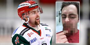 Oskar Svanlund visar upp sin skadade mun. Foto: Josefine Lofenius (Bildbyrån) / Privat.