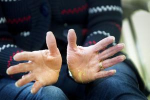 Händerna smörjer Erika Helmersson så fort hon varit i kontakt med vatten.
