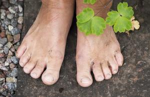 Bara fötter är inte så bara – om de har fått en knöl. Foto: Fredrik Sandberg/TT