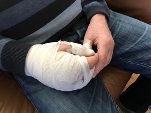 Ett brutet mellanhandsben och högerhanden i gips i 8 veckor är det som gäller nu.