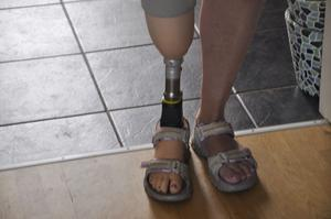 Med hjälp av protesen genomförde Ingela Vårruset nu i våras.