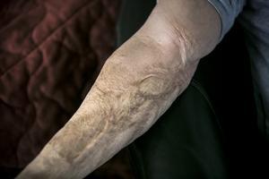 Ärr på armen vittnar om en händelse då Kent Bersico var nära att stryka med i en bilbrand.