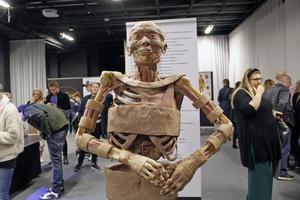 På denna kropp syns människans muskler.