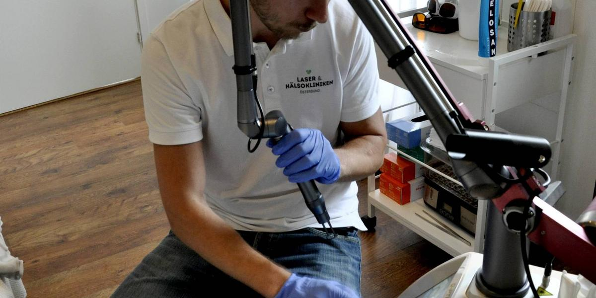 ta bort tatuering östersund