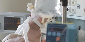 USÖ har minskat intensivvårdsplatserna på anestesi- och intensivvårdskliniken med 25 procent.