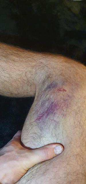 Så här såg Simon Lillas ben ut på måndagskvällen, två dagar efter slaget.