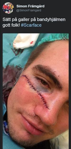 Simon Främgård hade visir på hjälmen vid olyckstillfället men kommer framöver att byta till galler uppger han på sin Twitter.