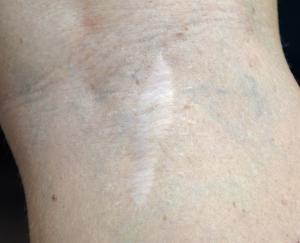Annica Magnusson hittade ett konstigt ojämnt märke i knävecket. Det visade sig vara mailgnt melanom.