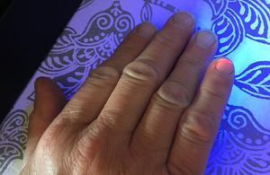 Fingerspetsen, som har fått en droppe av DNA-märkningsvätskan på sig, lyser rött i UV-ljuset.