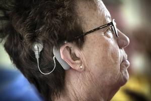 Cochleaimplantat är ett hörhjälpmedel som gör att personen kan uppfatta ljud på ett helt annat sätt än tidigare.