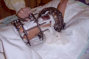 Brutal närbild på Linns vänstra ben efter en av de två benförlängningarna hon genomgick som barn. (Foto: Privat)
