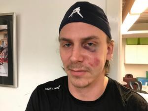 Andreas Molinder tvingades stå över fredagens träning efter att han fått en puck i ansiktet.