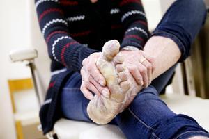 Mellan fotvårdsbesöken försöker Erika Helmersson själv hålla efter huden på sina fötter.