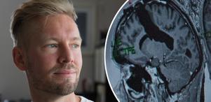 Det svarta hålrummet på röntgenbilden visar den bit av hjärnan som togs bort. 13 år efter cancerbeskedet har Anders Södergård fortfarande en liten bit av tumören kvar i hjärnan.