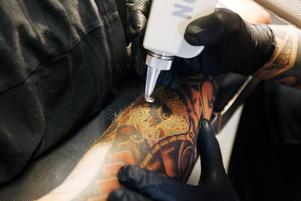 En del upplever det som smärtsamt att ta bort tatueringar, andra inte. Jonas Norlén tyckte att det knappt kändes.