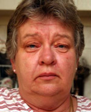 Ingela Eriksson fick astma på grund av mögel i luften i Fagerviks skola. Hon är nu sjukskriven men har också problem med ögonen som svullnat och klåda.