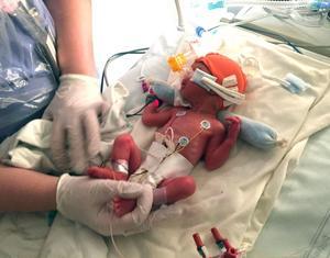 Mini är född nästan 12 veckor för tidigt. Hon vägde 985 gram, 30 procent mindre än vad hon borde ha vägt, och var 36 cm lång.