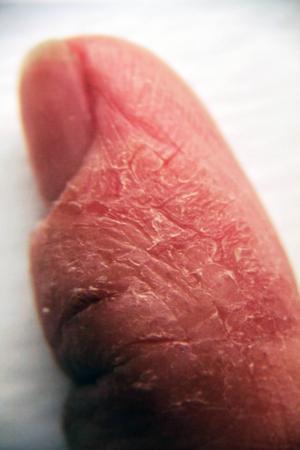 En uppsvälld tumme under en allergiattack.