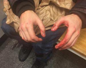 När polisen kom till platsen satt 20-åringen intill 30-åringens kropp. Hans händer var blodiga. (Bild ur polisens förundersökningsprotokoll.)