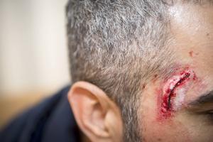 Otäcka sår sminkades på markörerna i övningen.