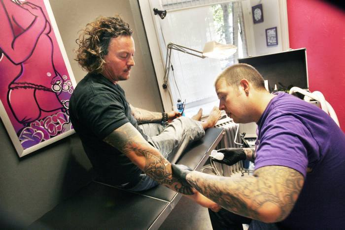 ta bort tatuering gävle