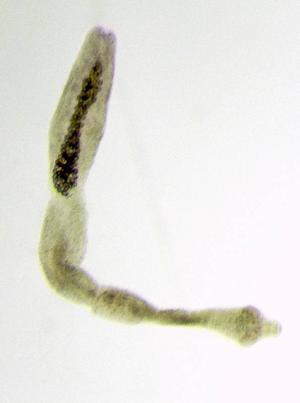 Dvärgbandmasken som den ser ut i mikroskop. De utökade kontrollerna av parasiten sammanfaller med jakten på räv framöver. Rävarna skickas till Statens Veterinärmedicinska Anstalt där de undersöks noga.