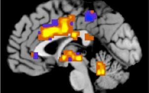 Mänsklig hjärna. Foto: Tor Wager