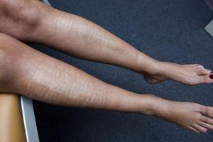 Ångrar hårborttagning. Marias familjeläkare rekommenderade en skönhetsklinik, men resultatet av hårborttagningen blev förödande.